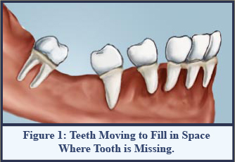 Figure 1:Teeth Moving to Fill in Space Where Tooth is Missing