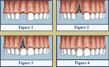Dental Implants Figures