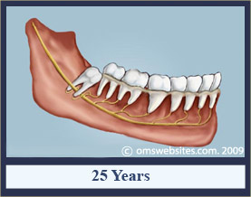 wisdomTooth_25years