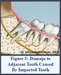 Adjacent_tooth